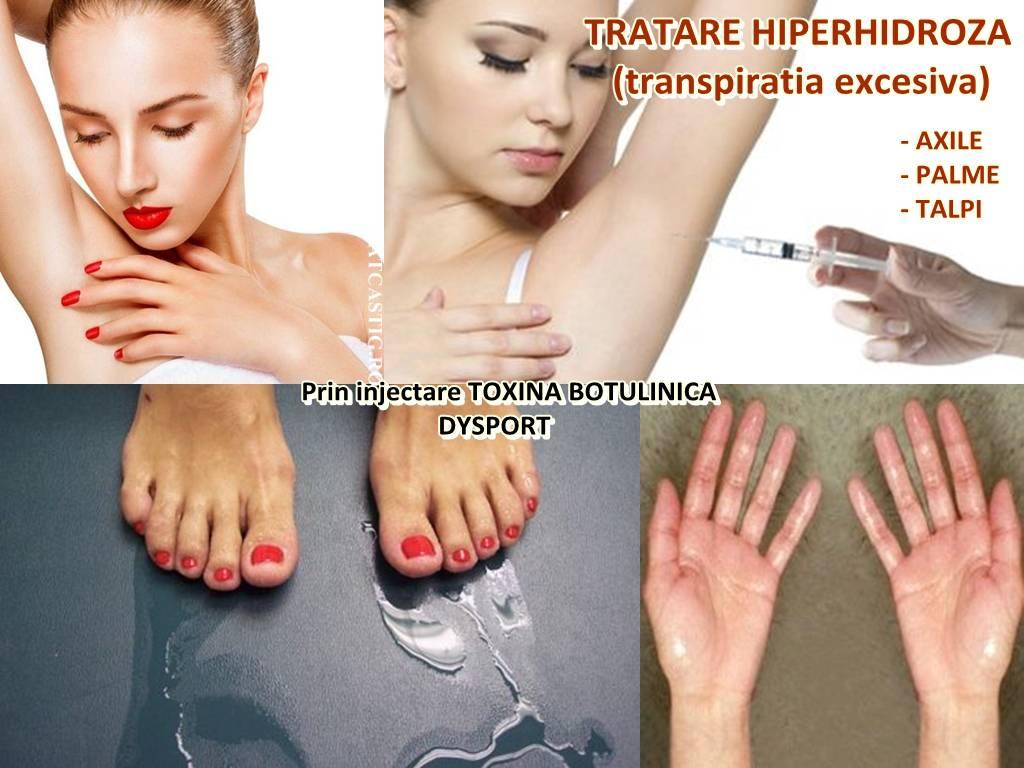 Poza Rusinos sau nu, Hiperhidroza ( transpiratia in exces) este o problema medicala! Tratare Hiperhidroza Axile, Palme sau Talpi cu Botox Dysport! 2