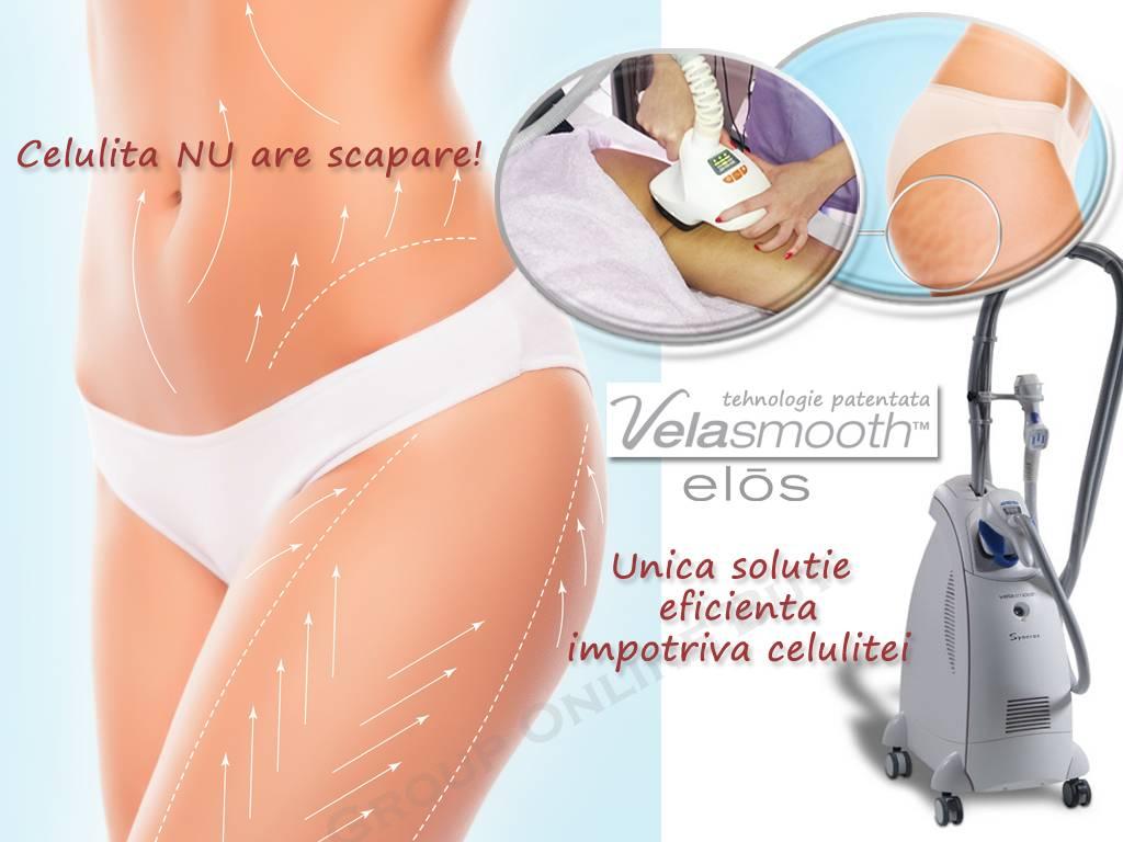 Poza VelaSmooth este solutia ideala pentru combaterea celulitei, conturarea soldurilor, abdomenului sau bratelor! 1 sau 3 sedinte la Clinica Medicala SlimArt! 13