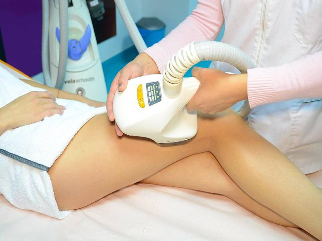 Poza VelaSmooth este solutia ideala pentru combaterea celulitei, conturarea soldurilor, abdomenului sau bratelor! 1 sau 3 sedinte la Clinica Medicala SlimArt! 6