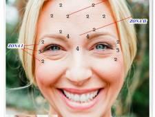 Poza Fara riduri! Injectare Botox Dysport, 40, 80 sau 120 unitati! Cea mai eficienta solutie anti-rid! Clinica Medicala Prestige 1