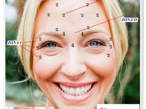 Poza Fara riduri! Injectare Botox , 40, 80 ( 1 sau 2 zone)! Cea mai eficienta solutie anti-rid! Clinica Medicala Slimart Floreasca 1