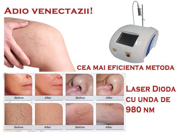 Poza Tratare venectazii cu Laser Dioda Laser 980 nm! 1/2 sedinte fata, umeri, spate sau picior 1
